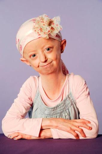 Фото №6 - Родилась бабушкой: как выглядят дети с болезнью Бенджамина Баттона