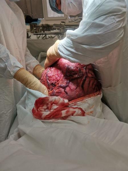 Фото №1 - Опухоль весом 12 кг удалили из живота 50-летней женщины томские хирурги