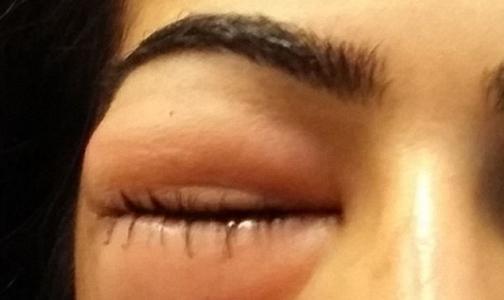 Фото №1 - Из-за насморка глаза женщины увеличились до размера мячей для гольфа