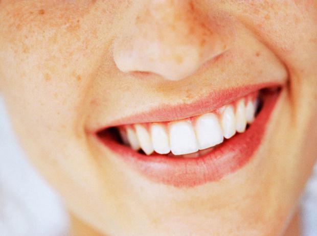 Фото №1 - Все, что стоит знать об отбеливании зубов