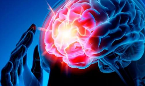 Фото №1 - Петербургский невролог: Чтобы спасти человека с инсультом, действуйте быстрее - «время = мозг»