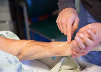 В Америке пациенту пересадили локоть с одной руки на другую