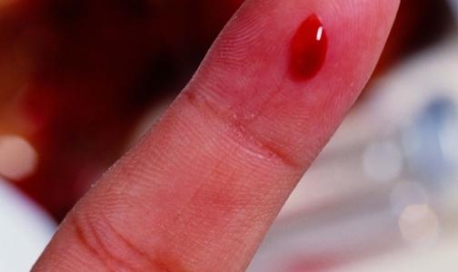 Фото №1 - Петербуржцы, страдающие гемофилией, теперь сдают анализы платно
