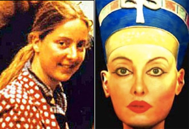 жертвы пластической хирургии до и после