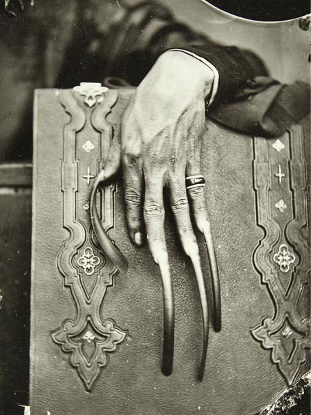 Фото №2 - 13 устрашающих стандартов красоты из прошлого