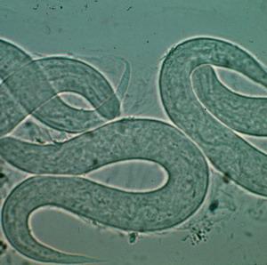 Фото №1 - Американцев съедают черви и паразиты