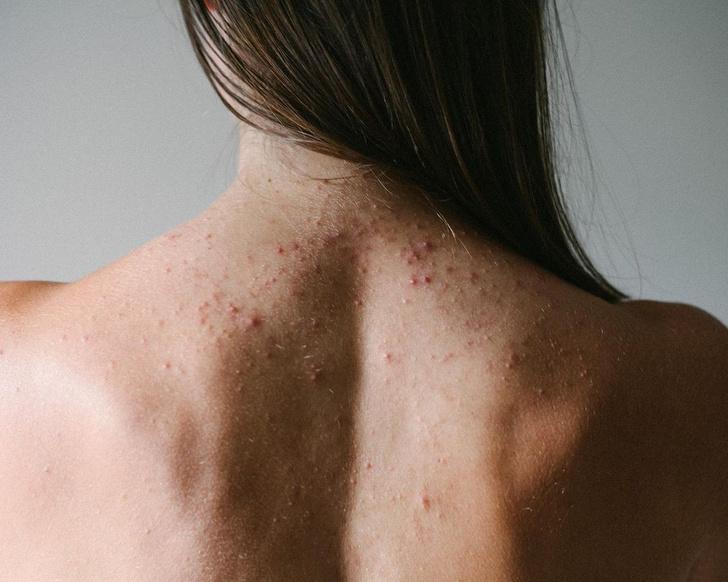 Фото №4 - Прыщи на спине: почему они появляются и как с ними бороться