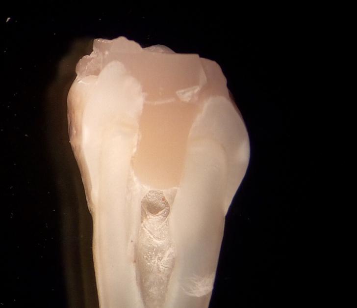 Фото №1 - Ученые создали инновационный клей для пломб