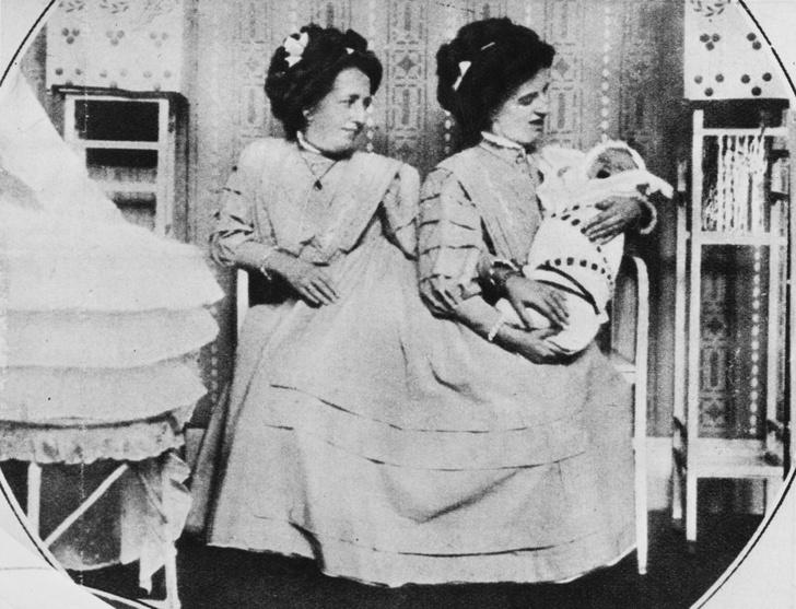 Фото №5 - Две матери одного сына: как сиамские близнецы Блажек жили, любили и родили