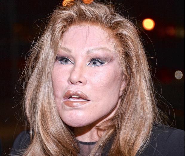 Фото №8 - Проклятие «женщины-кошки»: как красавица-миллиардерша стала жертвой пластики, а потом банкротом
