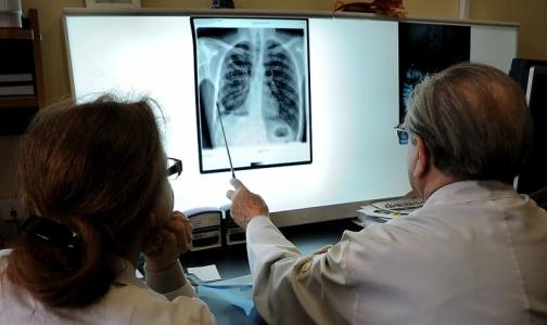 Фото №1 - ВОЗ назвала туберкулез самой смертоносной инфекцией в мире