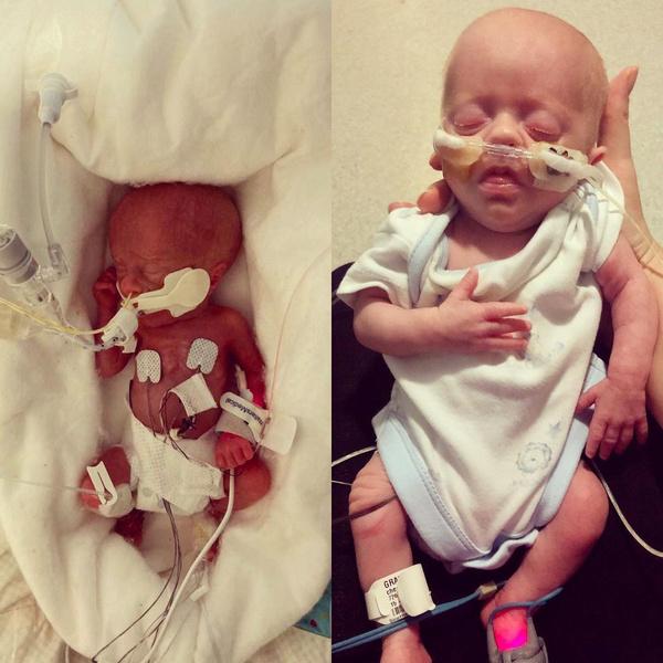 Фото №2 - Малыш весом 450 г выжил благодаря объятиям брата-близнеца