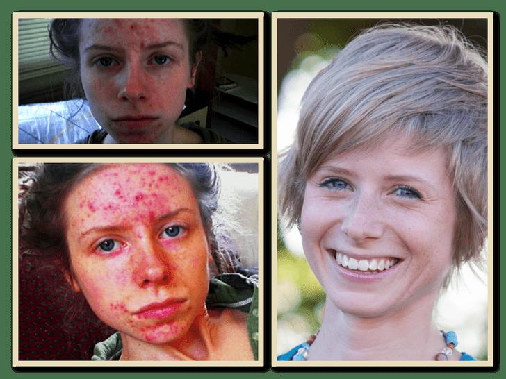 Фото №3 - Что стало с кожей девушки, которая не умывалась в течение полугода