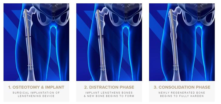 Три этапа увеличение роста: внедрение импланта; вокруг импланта наращивается новая кость; новая нарощенная кость укрепляется вокруг импланта.