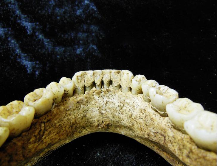 Фото №1 - Давние связи: зубной камень из бронзового века