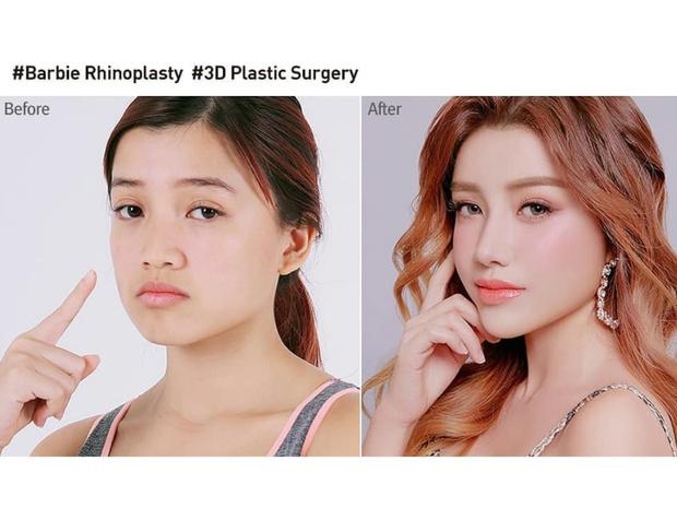 Фото №7 - Без ума от пластики: как кореянки меняют себя до неузнаваемости