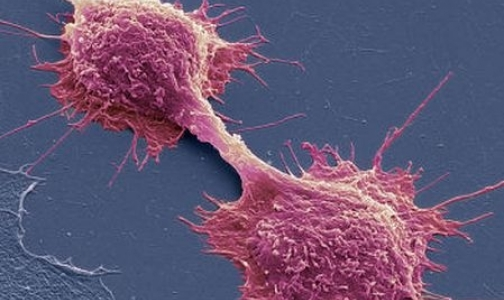 Фото №1 - Ученым удалось вызвать самоубийство раковых клеток