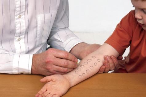 Аллергический дерматит у ребенка: как выявить аллерген?