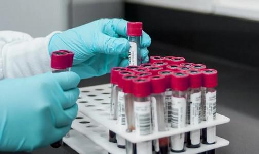 Фото №1 - «Спросите пульмонолога»: Почему IgM к коронавирусу «видны» спустя полгода после болезни — я снова заразился?