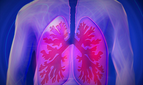 Фото №1 - В Верховном суде впервые разъяснили, как через суд отправлять пациентов с туберкулезом на лечение