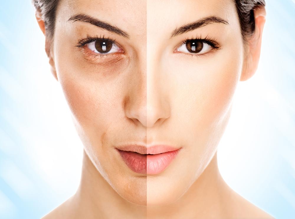 Как убрать возрастные морщины на лице