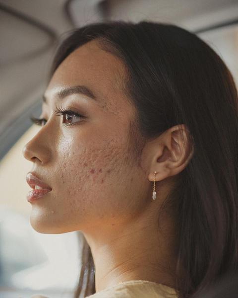 Фото №2 - Как избавиться от постакне: 5 советов для проблемной кожи