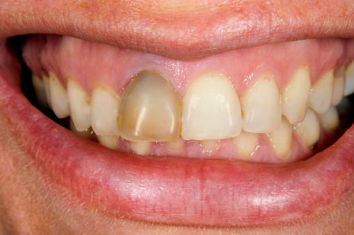Зуб почернел дырка