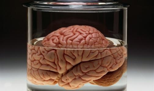 Фото №1 - Мозг человека достиг физических пределов развития