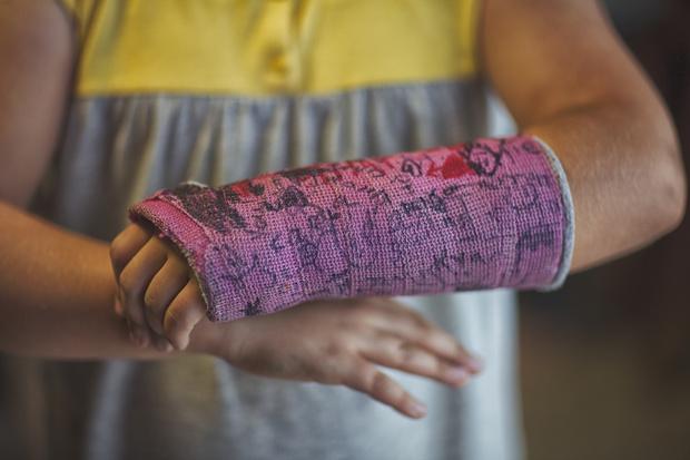 Фото №1 - Сломанная рука: к чему снится, толкование сна