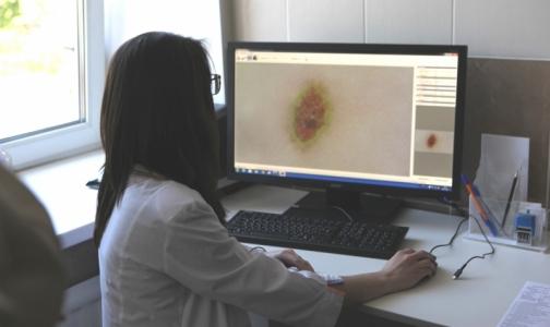 Фото №1 - В районном КВД Петербурга будут без биопсии определять рак кожи