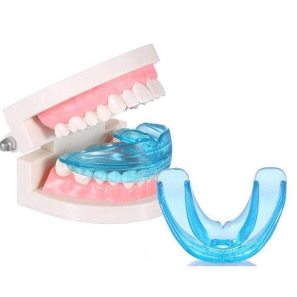 Фото №4 - Вместо брекетов: 3 альтернативных способа сделать зубы ровными