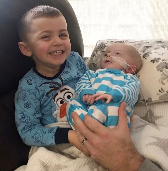 Фото №2 - Новорожденному сделали 11 операций на мозге за 10 месяцев