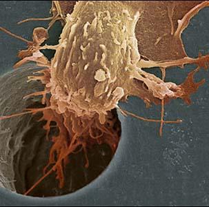 Фото №1 - Диагностика рака приостановлена