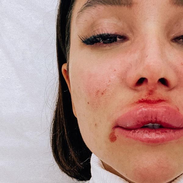 Фото №2 - Что-то пошло не так: звезда «Дома-2» показала неудачно накачанные губы