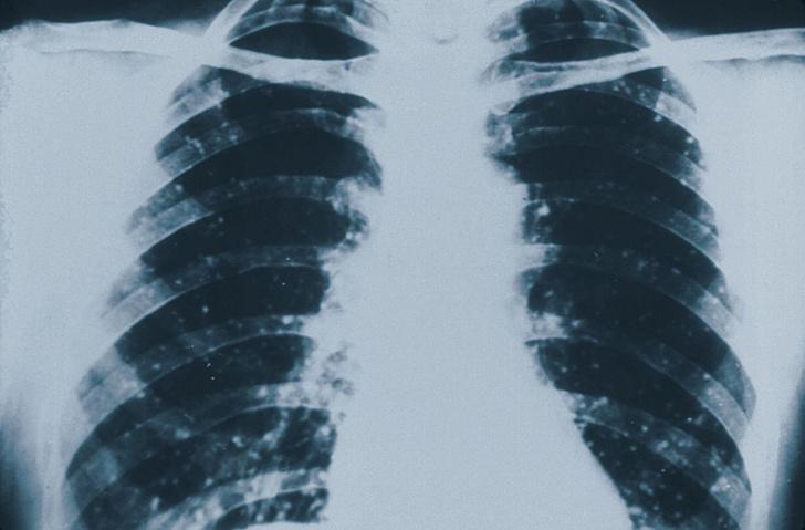 Фото №1 - Жизненно важная ёмкость: 7 фактов о легких