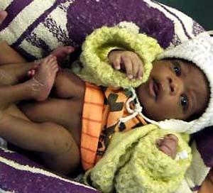 Фото №1 - В ЮАР родился четырехногий ребенок
