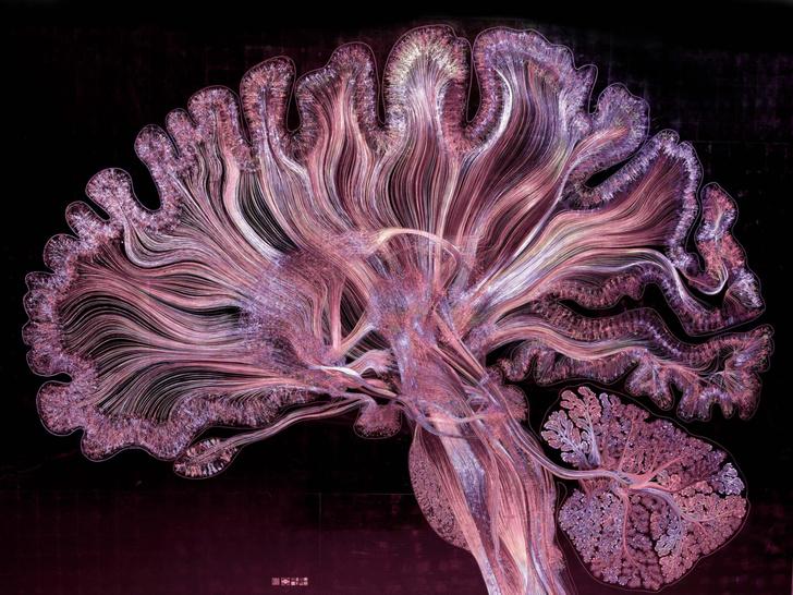 Фото №1 - Обнаружена область мозга, ответственная за забывание