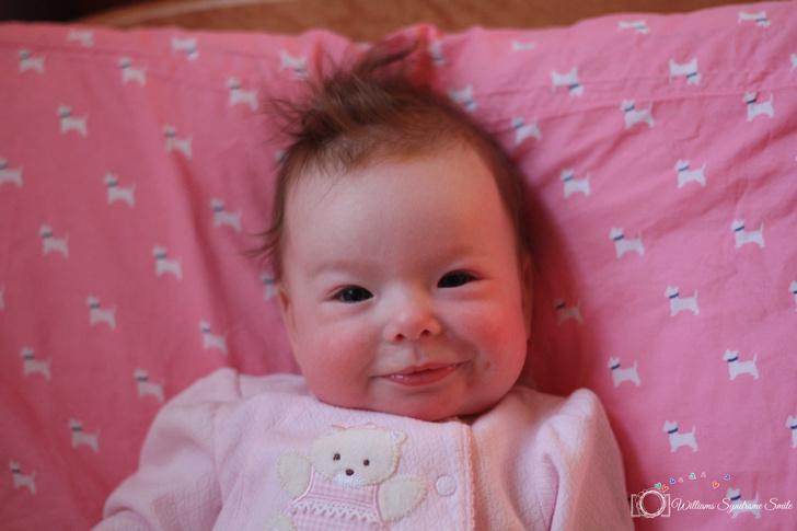 Фото №2 - Улыбка младенца оказалась симптомом неизлечимой болезни