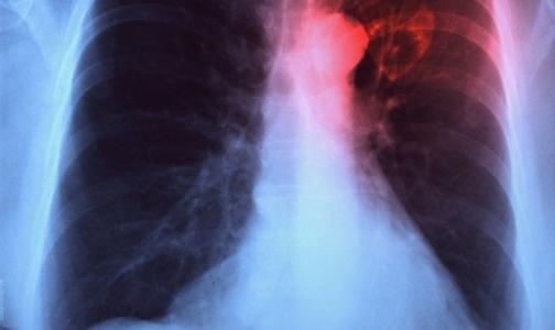 Фото №1 - Смертность от туберкулеза в России снизилась за год на 7 %
