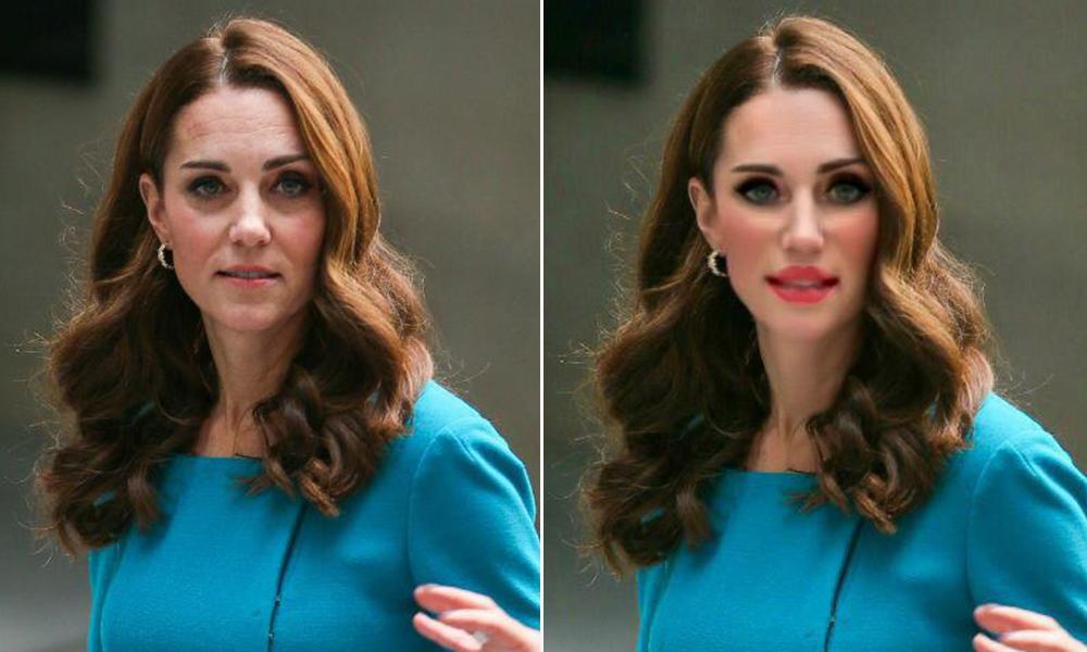 Как бы выглядели королевские особы, если бы делали пластику