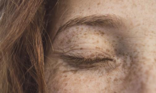 Фото №1 - Пигментные пятна на лице и теле: почему они появляются, и что с этим делать