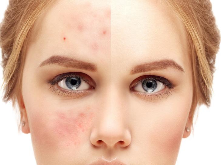 Фото №6 - Дерматозы и дерматиты: в чем разница, и как понять, что пора обратиться к врачу