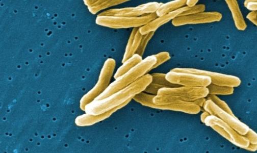 Фото №1 - Ученые выяснили, почему российский туберкулез заразнее зарубежного