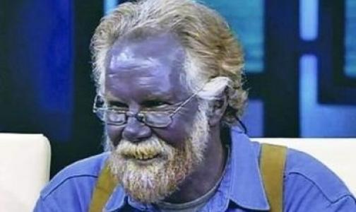 Фото №1 - Самолечение сделало мужчину фиолетовым (видео)