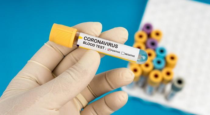 Коронавирус: меры предосторожности или умственное затмение?