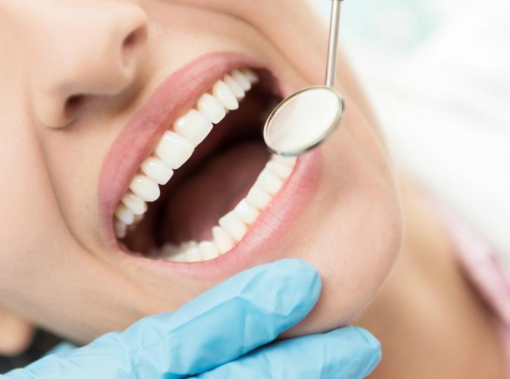 Фото №2 - 6 вопросов и ответов, которые заменят консультацию у стоматолога
