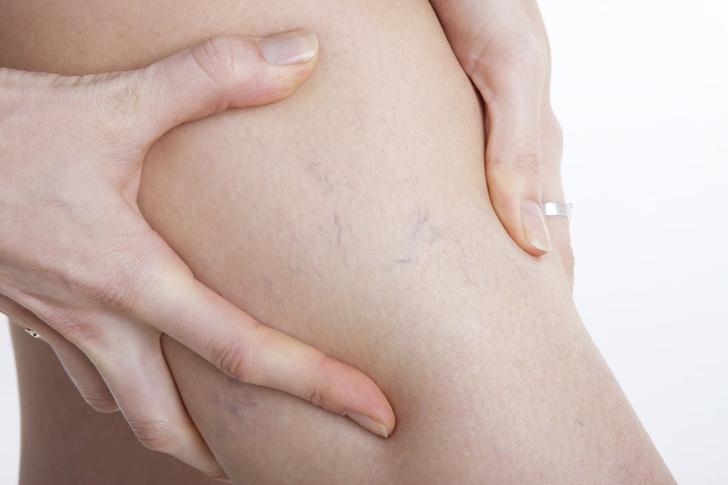 варикозная болезнь при беременности