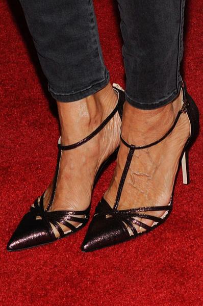 Фото №2 - Меган Маркл и другие звезды, которые страдают от проблем с ногами