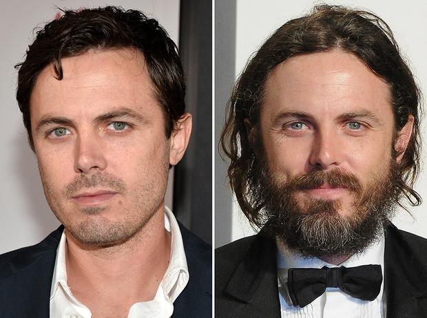 Фото №27 - 35 звездных фото, доказывающих, что иногда лучше побриться