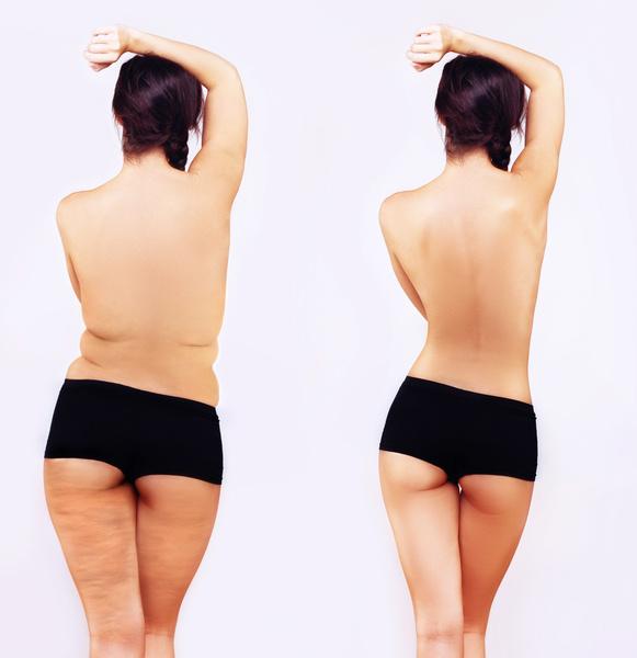 Фото №3 - Как хирурги благодаря липоскульптуре «лепят» идеальные грудь и бедра